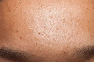 acné rétentionnelle