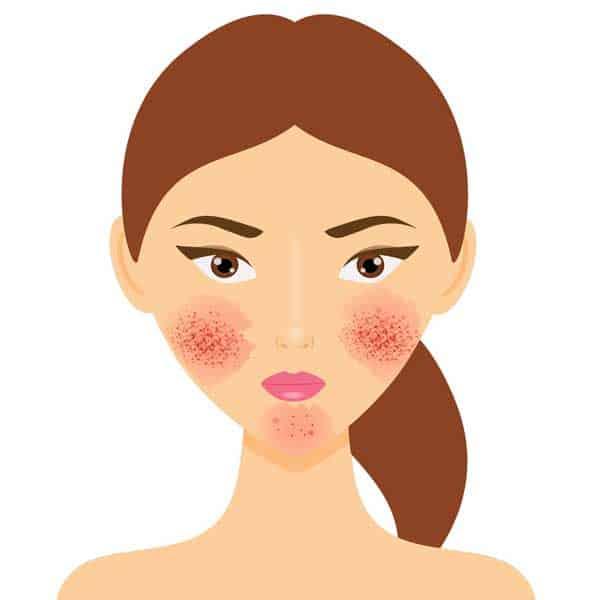 acné rosacée