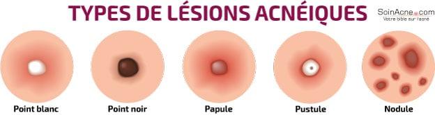 types de lésions acnéiques