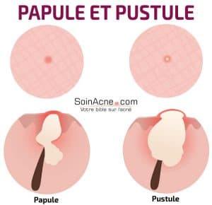 différence entre papule et pustule